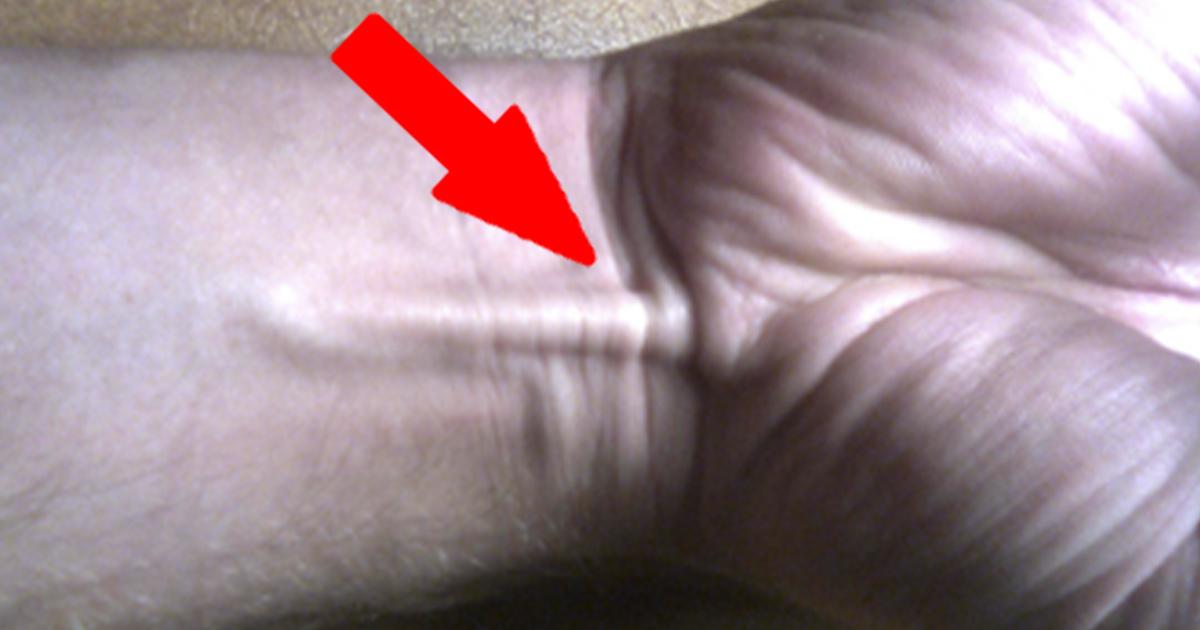 العضلة الراحية الطويلة