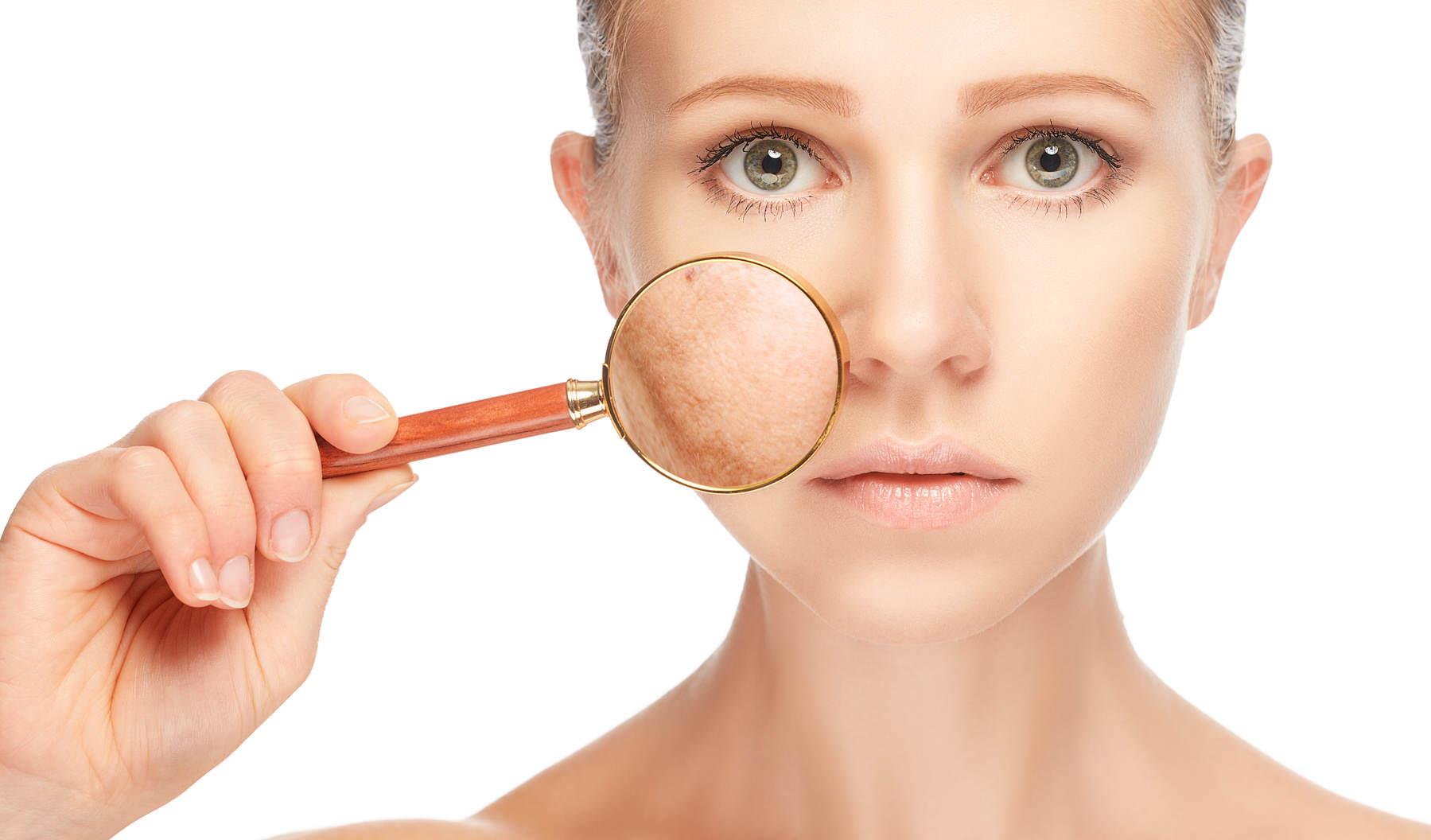 البقع على الجلد بسبب الإجهاد