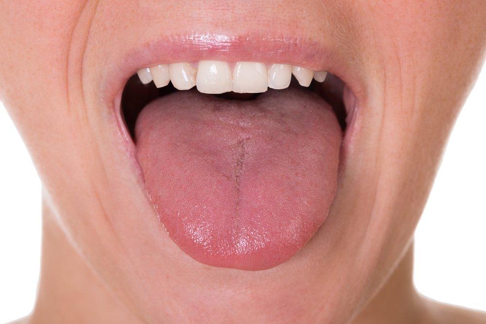 أول 5 أعراض لسرطان اللسان