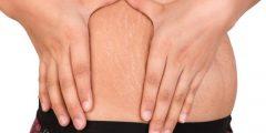 2 بدائل طبيعية لعلاج علامات التمدد