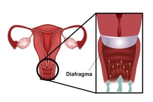 كيفية استخدام الحجاب الحاجز لتجنب الحمل