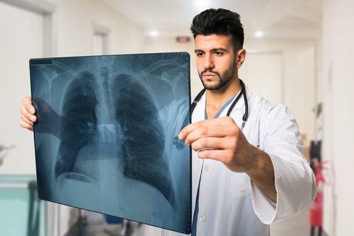 يتم التشخيص النهائي للالتهاب الرئوي عن طريق التصوير الشعاعي