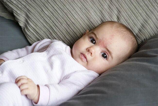 أعراض ورم وعائي عند الرضع