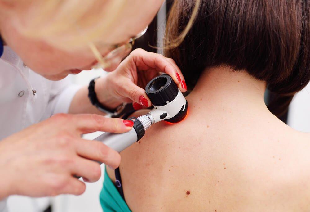 الميلانوما هو النوع الخطير الوحيد من سرطان الجلد