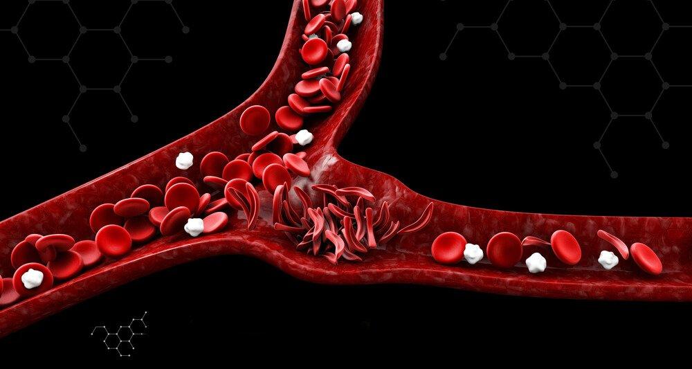أعراض فقر الدم المنجلي