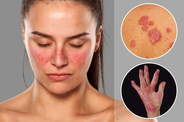 مرض الذئبة - الآفة على الوجه مثل أجنحة الفراشة