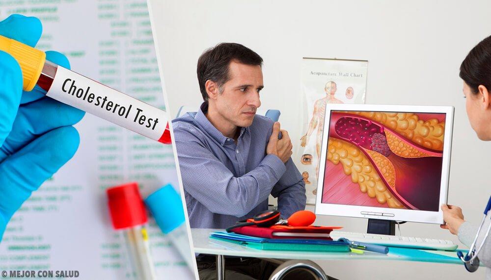 المستوى الأمثل من الكوليسترول ، عندما يكون لديك ما يدعو للقلق