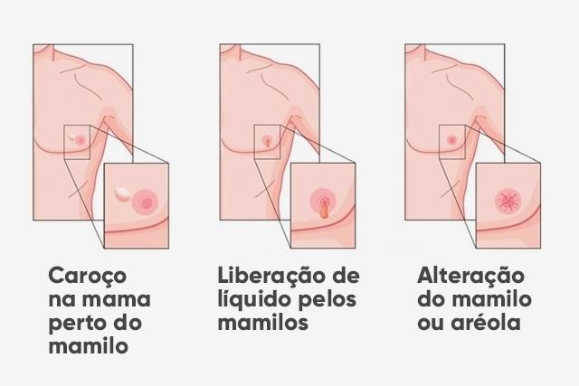 11 أعراض سرطان الثدي