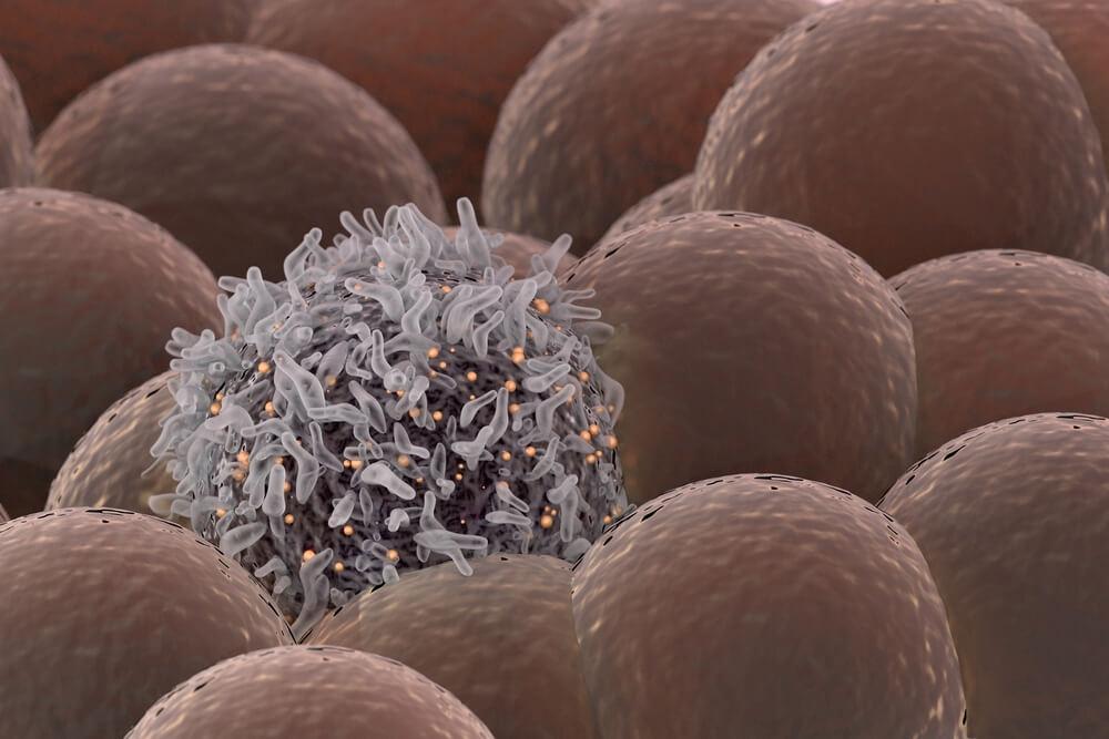 سرطان الثدي الثلاثي السلبي