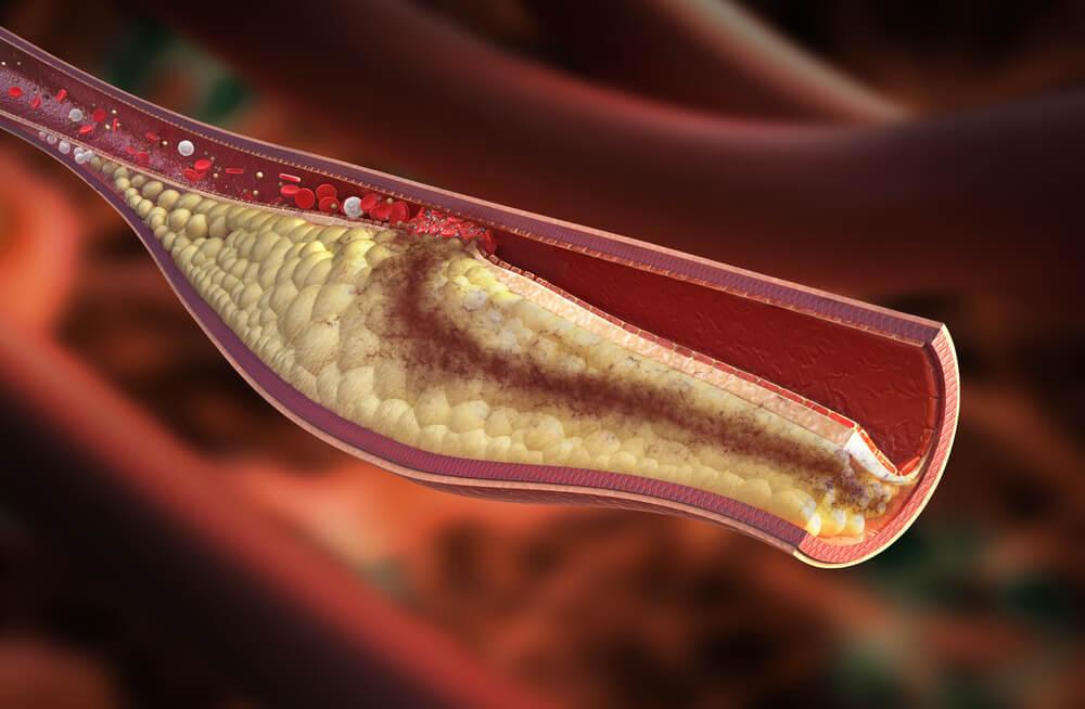 تطوير فرط كوليستيرول الدم العائلي