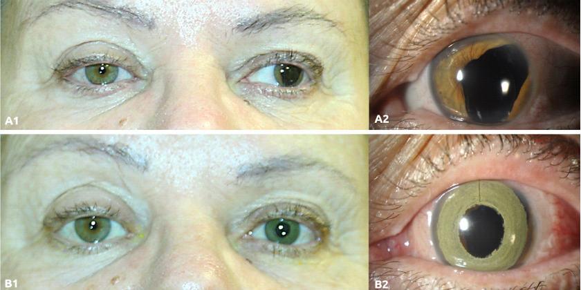 قبل وبعد تطبيق تقنية التقرن على العين.